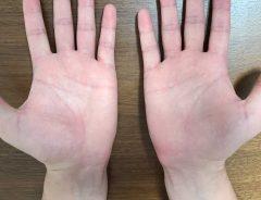 手相の見方が分からない! 基本は右手、左手どっち? 生命線は長さではなく…
